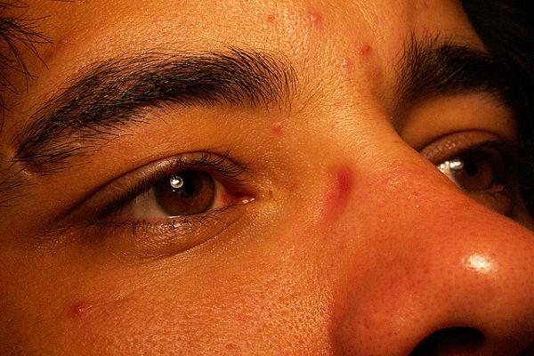 acne ejercicio