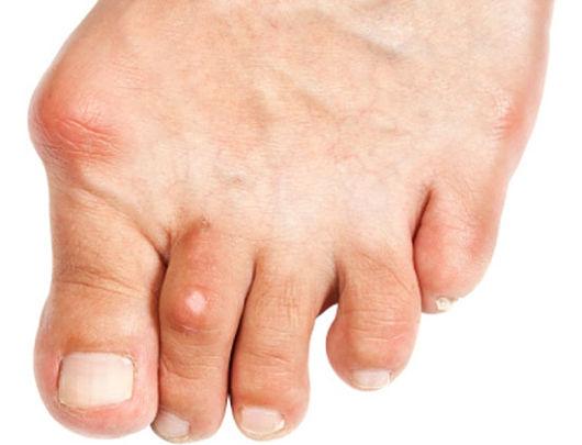 Urico elevado causas de acido