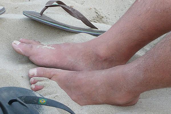 chanclas verano pies
