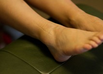 fractura tobillo