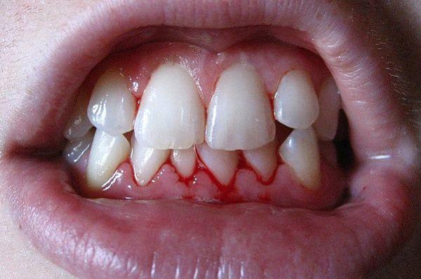 gingivitis sintomas