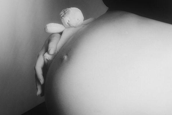 síndrome del ovario poliquístico